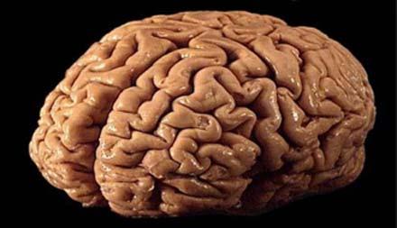 استخدام موجات المخ الكهربائية لمرضى الشلل